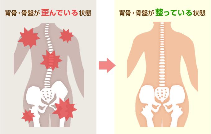 背骨・骨盤が歪んでいる状態→背骨・骨盤が整っている状態